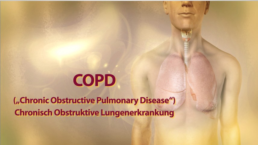 Erklärfilm für Patienten | 084 COPD