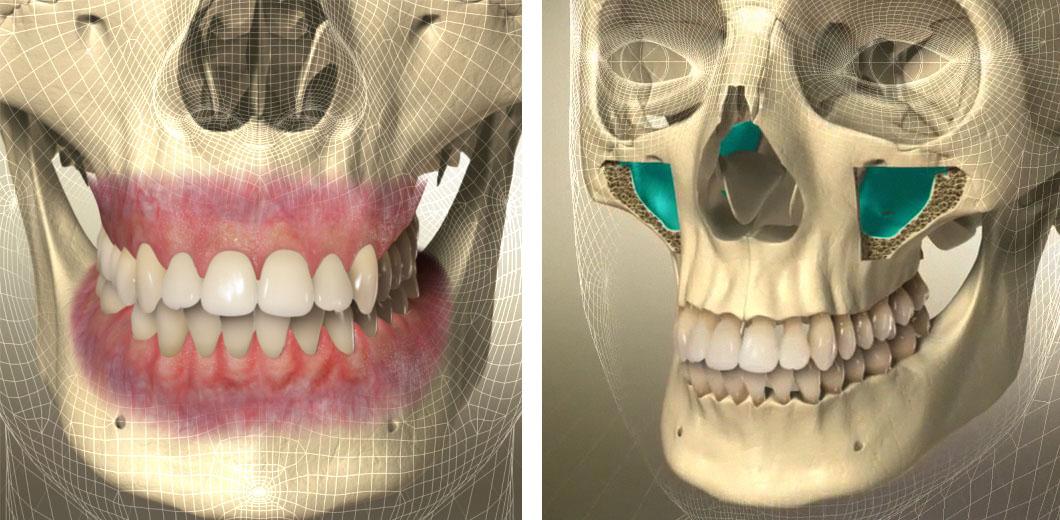 3D-Animation | Erklärfilme für die Implantologie
