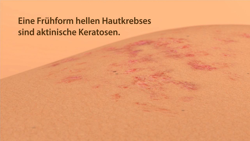Erklärfilm, Patienteninformationsfilm | Hautkrebsvorsorge