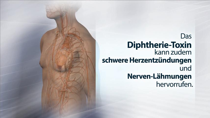 Erklärfilm, Patienteninformationsfilm | Impfung Diphterie