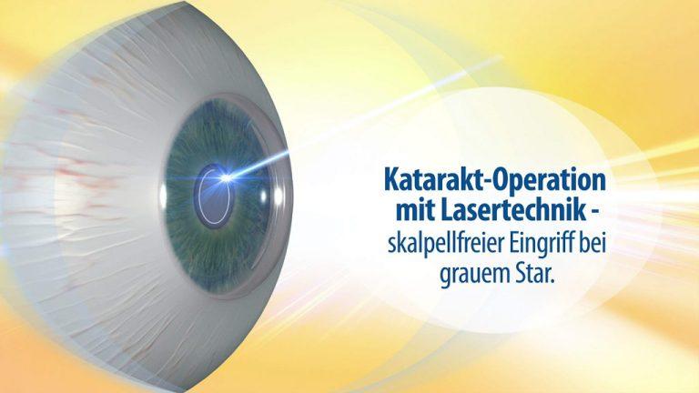 Erklärfilm, Patienteninformationsfilm | Katarakt Operations-Laser