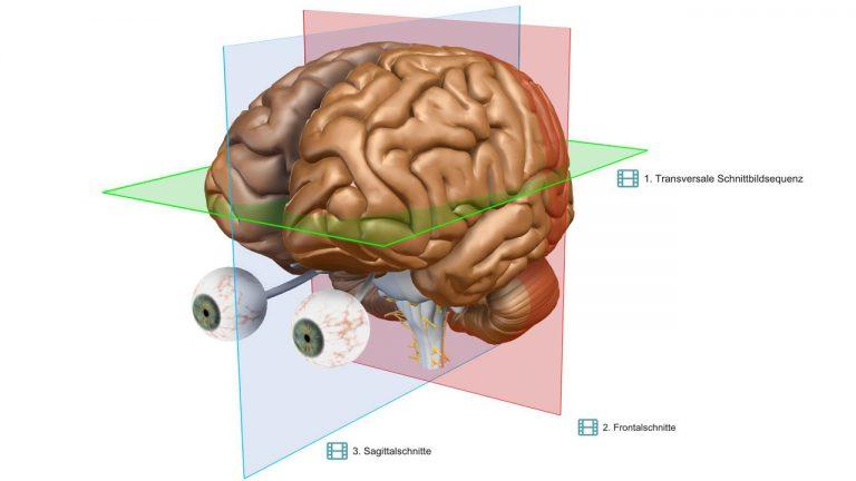 VR-Gehirn | Schnittebenen